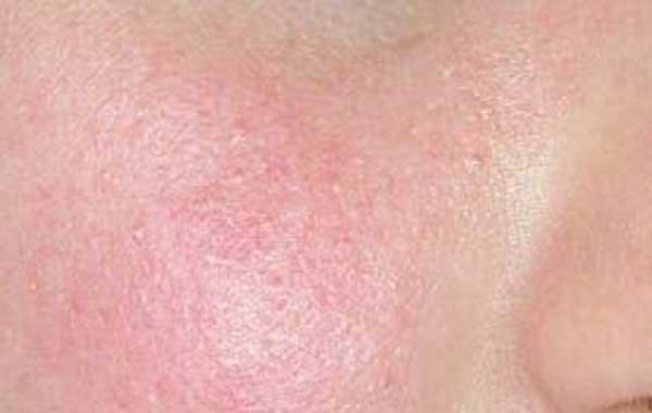 Cuperosis Tratamiento Natural Para La Rosácea Y Las Pieles Con Rojeces