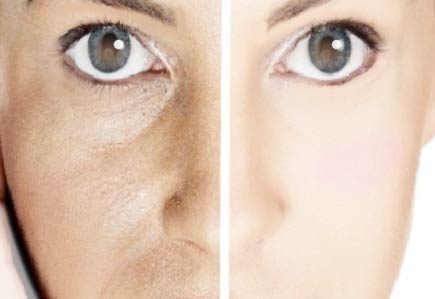 cosmética natural poros dilatados