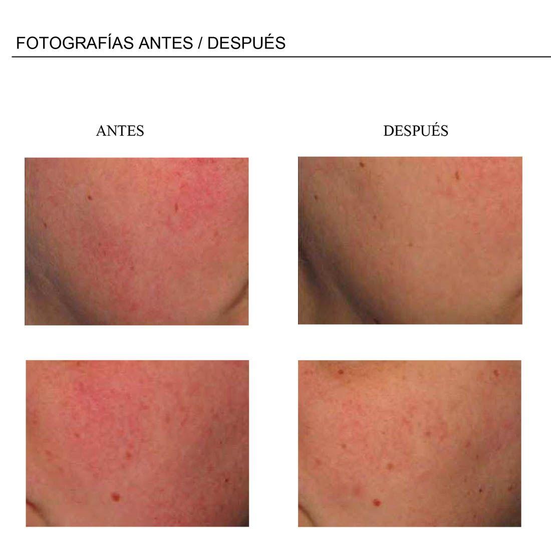 Tratamiento de la cuperosis con Micronizado dermo-calmante